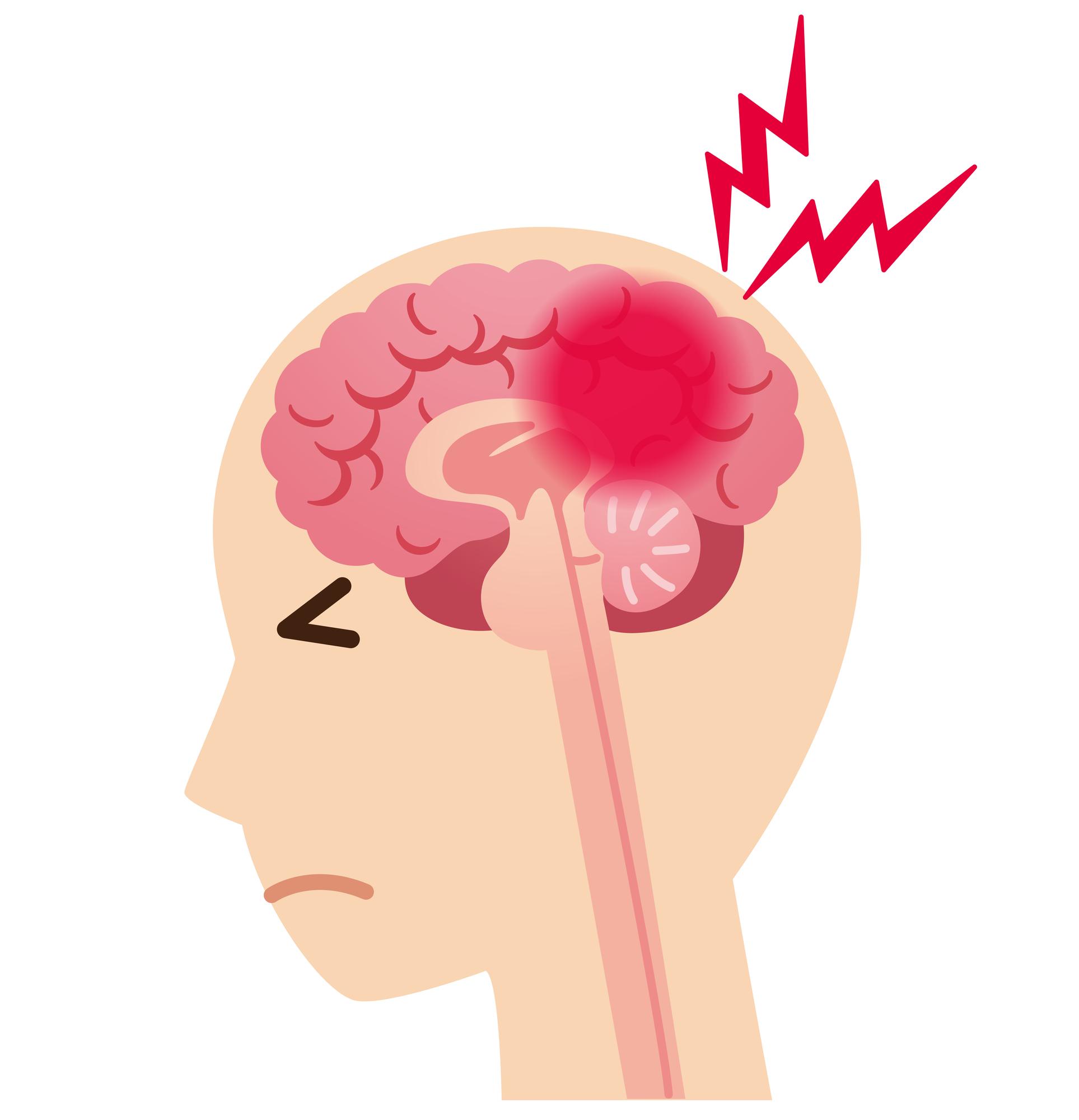 脳 梗塞 の 前兆 肩こり
